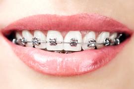 Stalni zobni aparat
