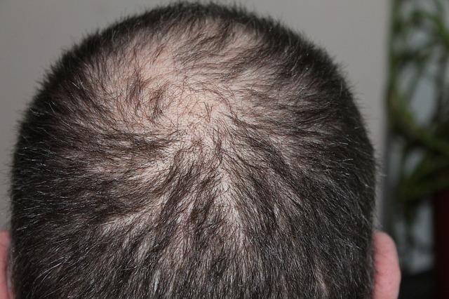 Izpadanje las pri moških