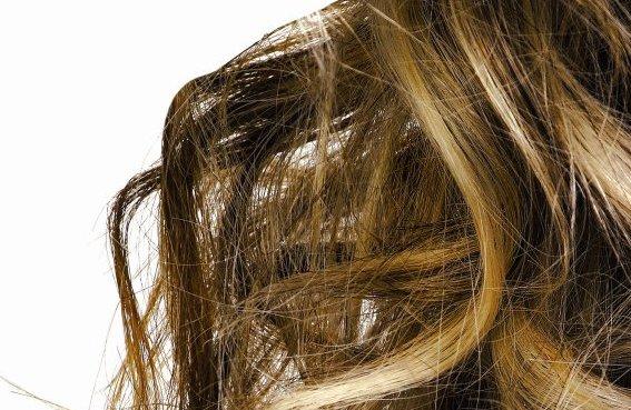 Izpadanje las in motnje lasišča