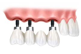 najboljši zobni implantati Slovenija